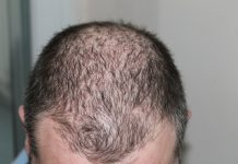 stop hair loss and aid growth